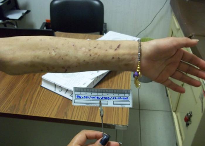 En abril de este año, la PJGDF rescató a una joven de 22 años que permaneció esclavizada más de dos años encadenada del cuello a un mueble junto a la plancha de un negocio de tintorería en la delegación Tlalpan. Foto: Cuartoscuro