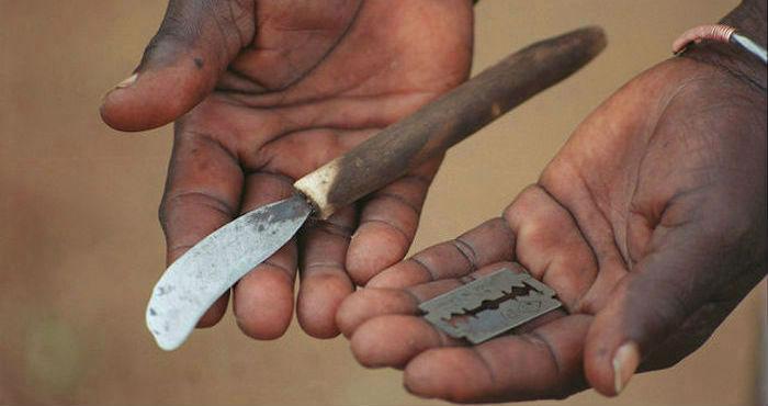 Las cuchillas con las que se practica la ablación. Imagen cedida a ElDiario.es por World Vision