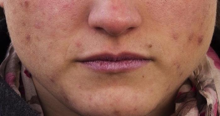 Las células de las personas con acné tienen una protección integrada contra el envejecimiento. Foto: Universidad de Granada