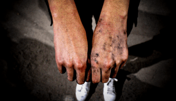 Policias atacaron sexualmente a menor que iba en marcha de mujeres en Guanajuato