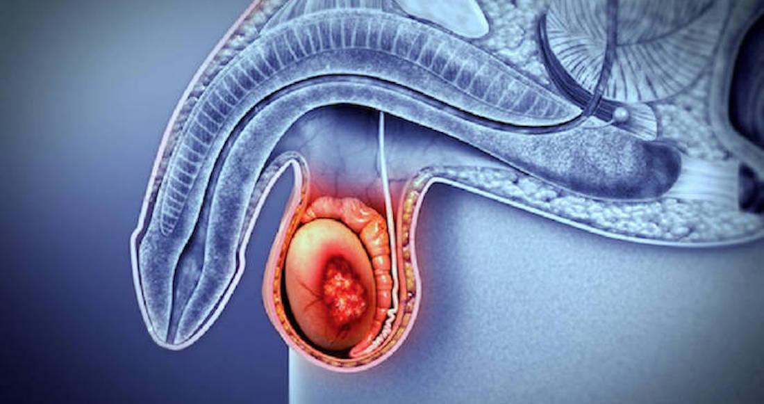 Cancer colon jovenes sintomas