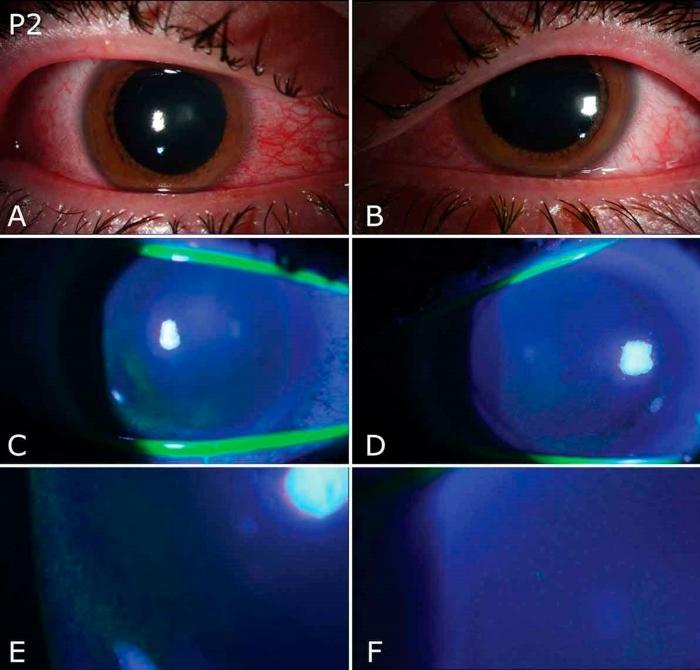 befunky collage 2020 11 24t212518 312 - El uso de lámparas germicidas puede provocar daños oculares, alertan oftalmólogos de Miami
