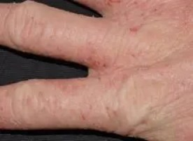 irritant contact dermatitis on hand