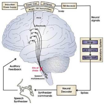 Implanted electrodes in the speech center of the brain can communicate wirelessy via FM transmission with a computer. This allows a computer to inteprete brain activity into sounds using a speech synthesizer.