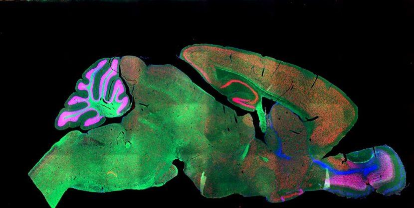 fluorescent stain on mouse brain imaging neuroscience