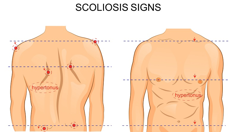 Scoliosis Surgery Benefits