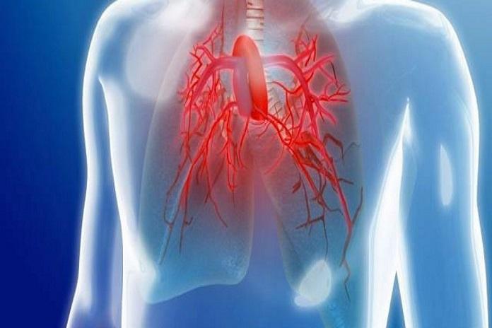 ¿Asma o ataques de pánico? Hipertensión arterial pulmonar..