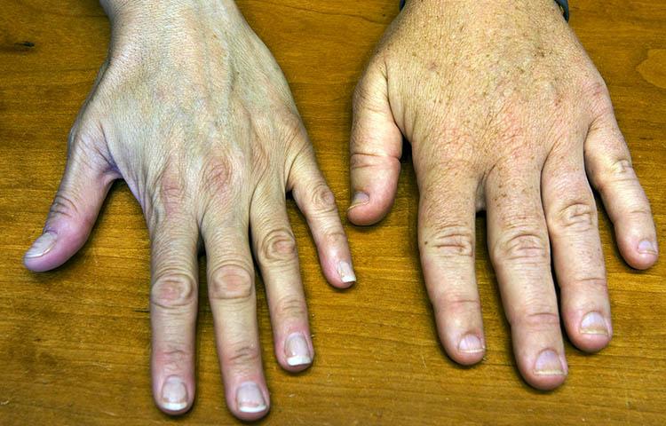 Acromegalia sintomas