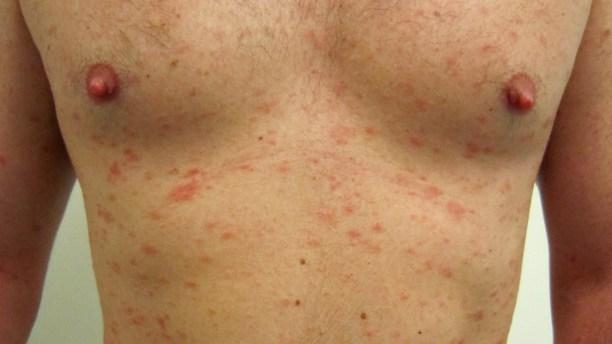 enfermedades de transmisión sexual sífilis