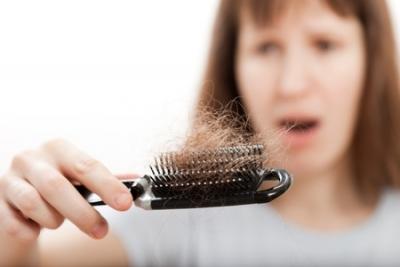 alopecia causas