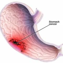 Pathophysiology Of Peptic Ulcer Disease Diagram 1997 Ford F150 Fuse Panel Síntomas Del Cáncer De Estómago Prevención Y