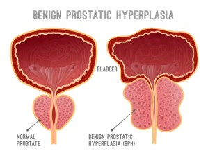 comparison between normal prostate and one with BPH