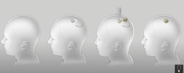 Neuralink Nedir ve Neyi Değiştirecek?