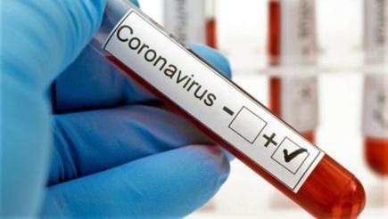 Exame de coronavírus — Foto: Divulgação