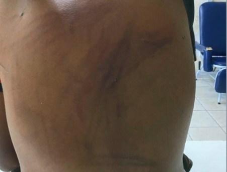 Marcas de espancamento nas costas de adolescente de 13 anos