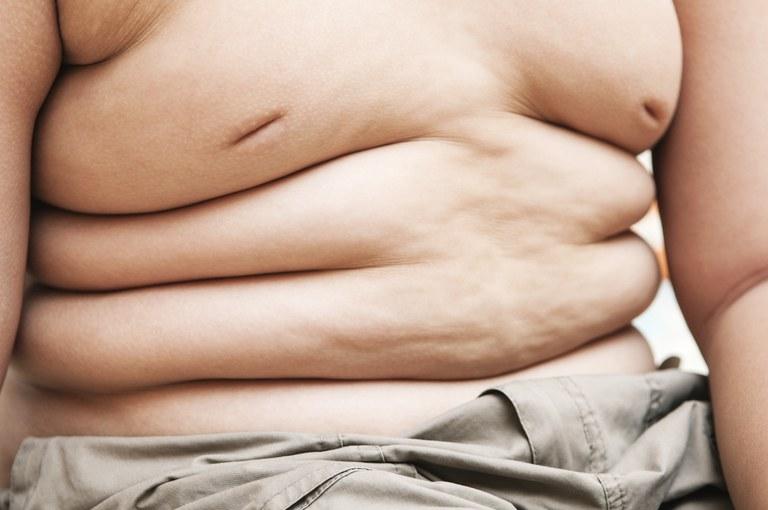 Obesidade infantil: gestores municipais têm até 17 de setembro para aderir à estratégia de prevenção