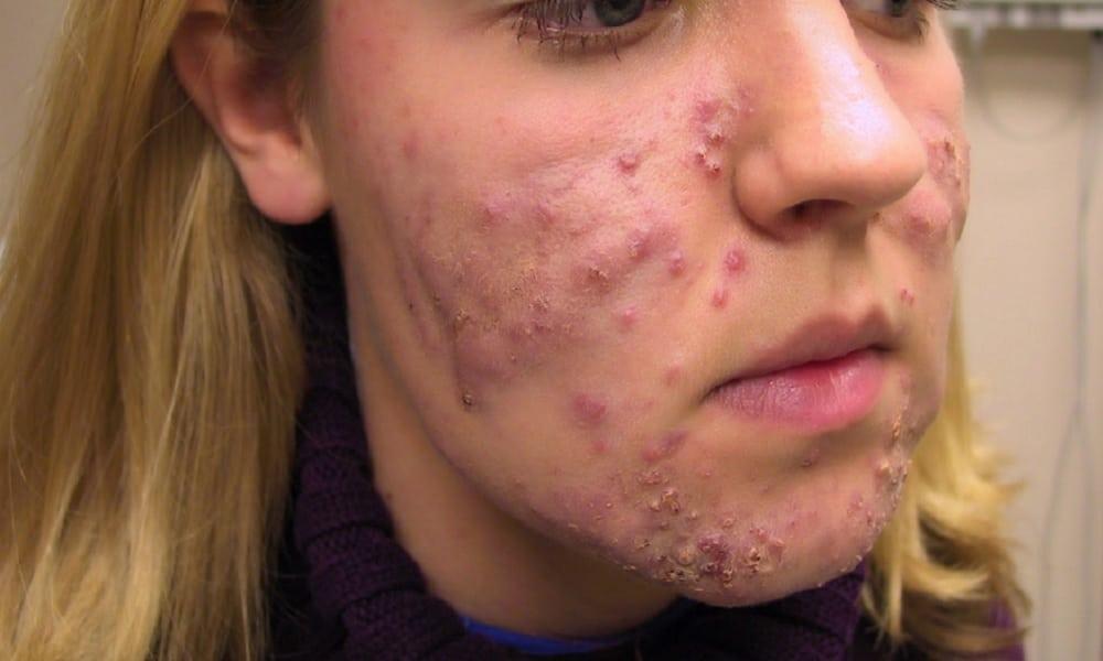 acne em adultos - como tratar