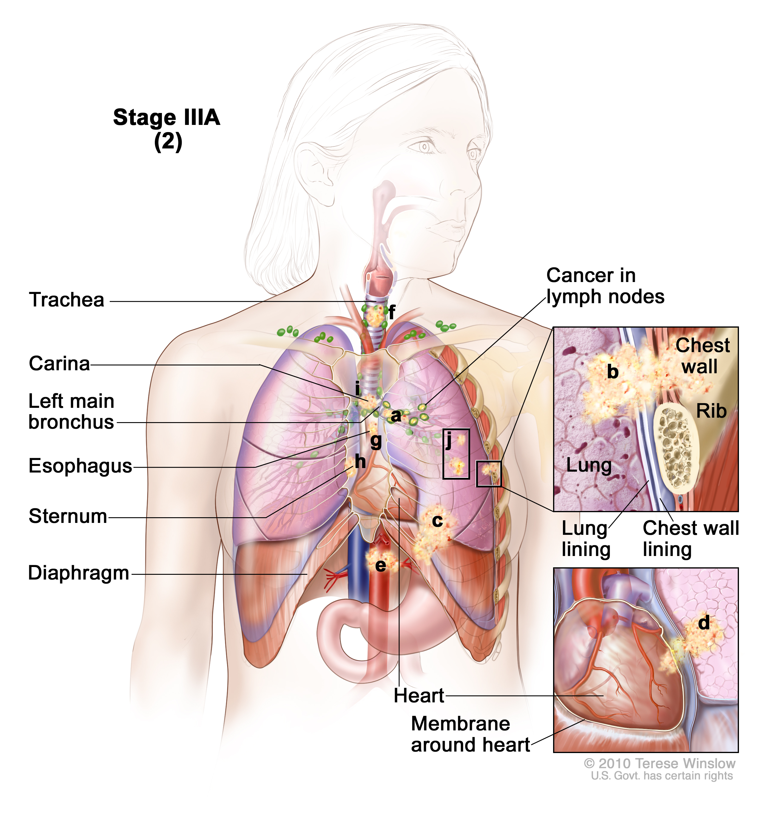 where are your lungs located in back diagram 06 f150 starter wiring non small cell lung cancer treatment pdq health