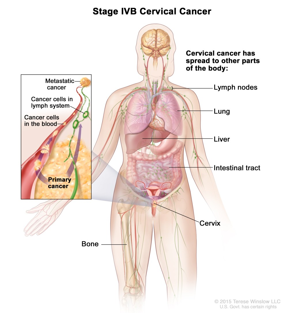 medium resolution of caption stage iva cervical cancer cancer has spread to nearby organs such as the bladder or rectum