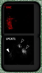 vhc_lpcat1