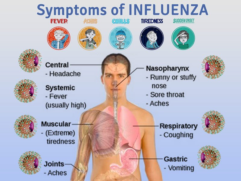 What Are The Signs And Symptoms Of Flu? - ayelomi12b2106s2
