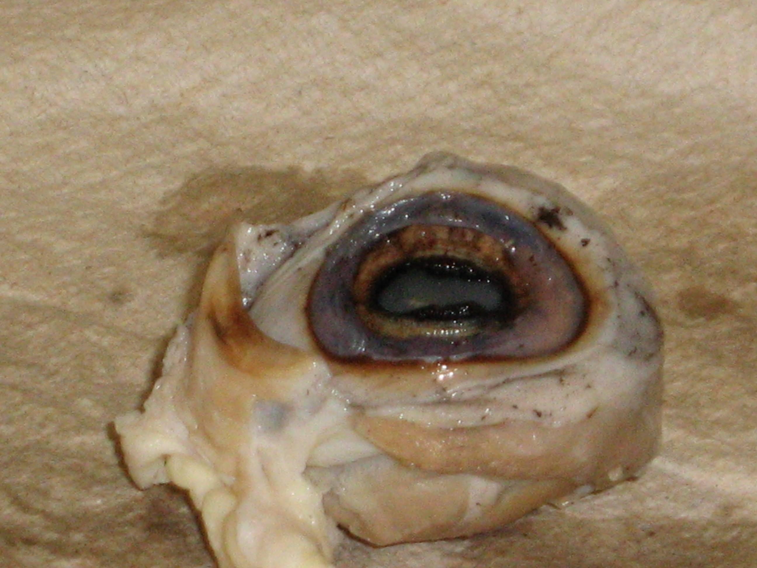 Eyeballdissection