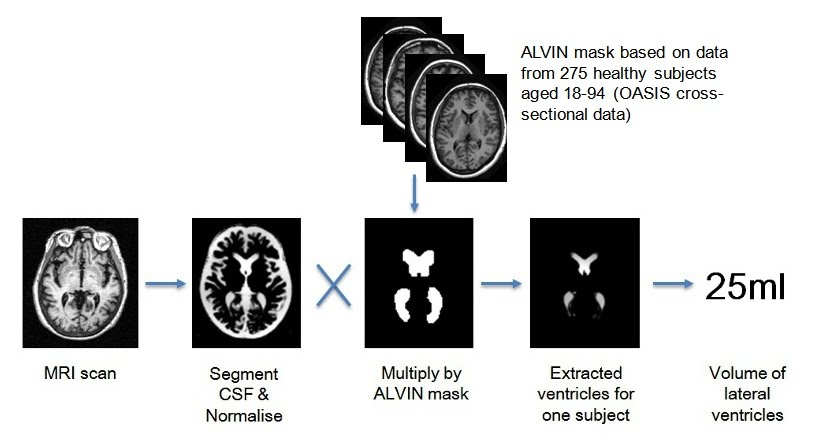 ALVIN lateral ventricle segmentation
