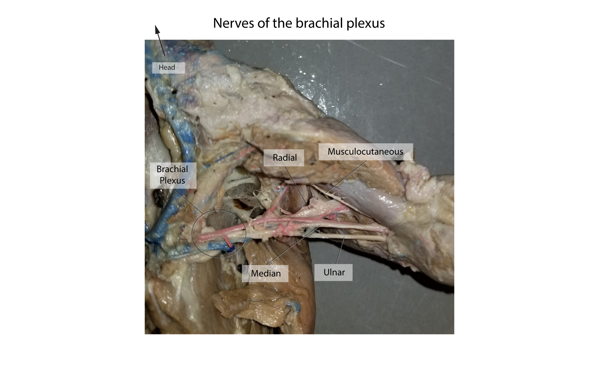 hight resolution of mink arm nerves