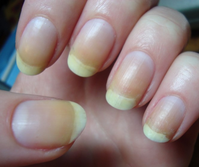 Image Led Get Rid Of Yellow Nails Step 3