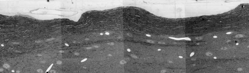Electron micrograph of the optic tract and surface of the mouse LGN