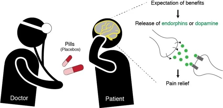 Figure 1: The expectation of benefit associated with a placebo causes measureable changes in neurobiological signaling pathways, resulting in pain relief.