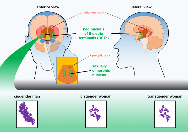 Figure 3: Transgender women tend to have brain structures that resemble cisgender women, rather than cisgender men. Two sexually dimorphic (differing between men and women) areas of the brain are often compared between men and women. The bed nucleus of the stria terminalus (BSTc) and sexually dimorphic nucleus of transgender women are more similar to those of cisgender woman than to those of cisgender men, suggesting that the general brain structure of these women is in keeping with their gender identity.