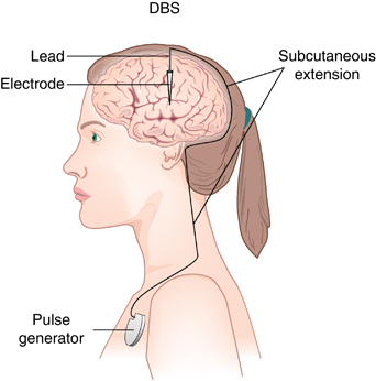 "Figure 1: Basic DBS design. Patients are placed in a headframe while an MRI scan is taken to get a map of your brain and determine where the electrode(s) will be placed. They then receive local anesthesia on their skull, where surgeons make a small hole to slide the electrode and its lead to the target area. Patients are typically awake for this portion of the surgery so doctors can test the stimulation and ensure the electrode is in the correct location. With the electrode properly in place, patients are then put under general anesthesia so the pulse generator can be implanted in their chest. Pulse generators are remote controlled and programmable to customize stimulation frequencies. (Image from ""Somatic Treatments for Mood Disorders"" Liansby et al, Neuropscyhopharmacology 2011)"