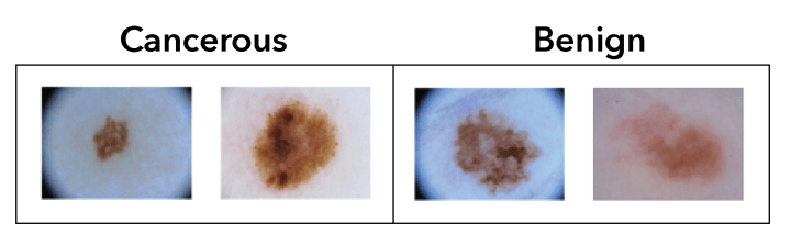 Figure 1. Cancerous and benign lesions appear similar to the naked eye. These images are from the ISIC 2016 melanoma diagnosis dataset.