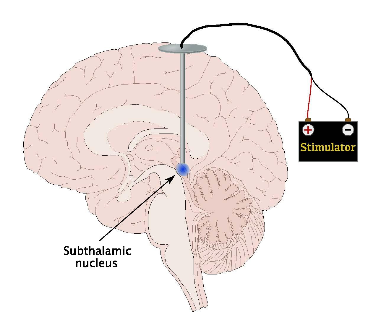 Remote Brain Stimulation A New Treatment For Parkinsons Disease
