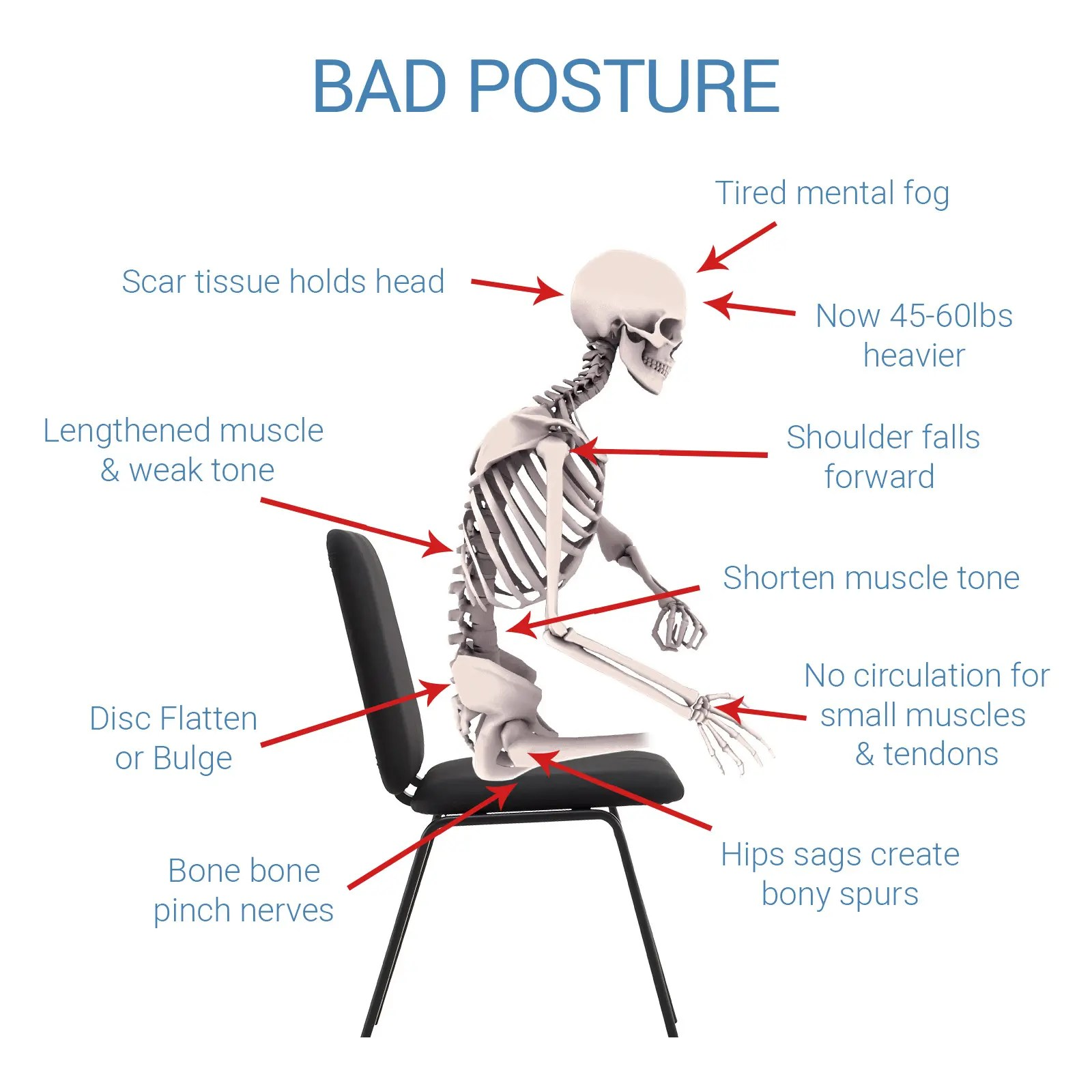 bad posture in chair sears high chairs canada sitts cushion lower back pain relief and lumbar