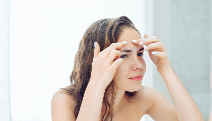 remove a pimple in 1 hour effective way