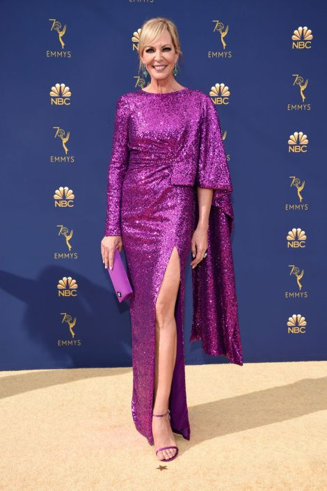 hbz emmys 2018 allison janney 1537226841 - Emmy's Awards 2018 - The Best Dressed Celebrities