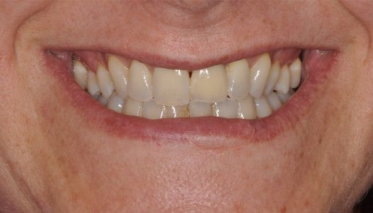 Implant #9 with Crown