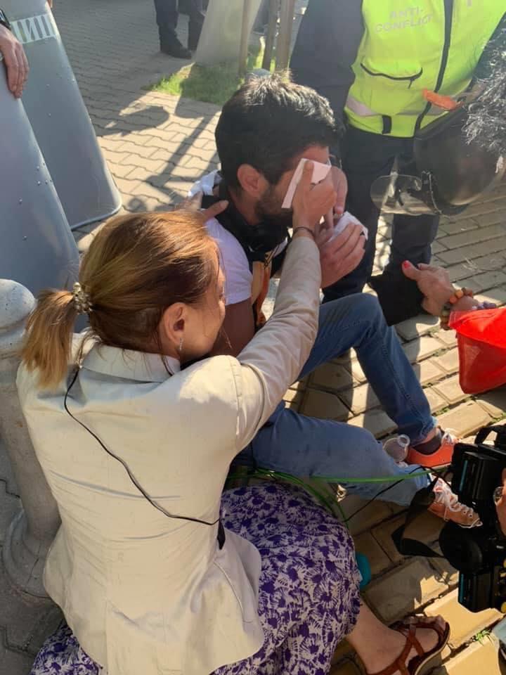Пострадалият от сълзотворен газ оператор: Мислех, че ще ослепея (СНИМКИ)