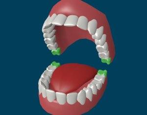 Зуб-мудрости-5