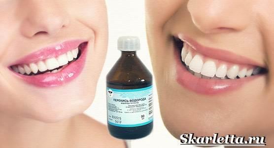 Отбеливание-зубов-в-домашних-условиях-6