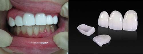 Виниры-на-зубы-их-классификация-способы-установки-цены-2-1