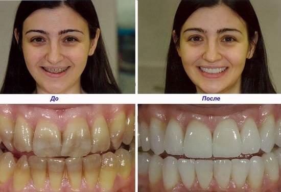Виниры-на-зубы-их-классификация-способы-установки-цены-3-1