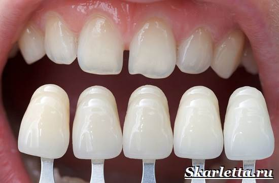 Виниры-на-зубы-их-классификация-способы-установки-цены-8-1