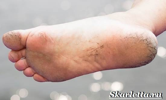 Трещины-пяток-Причины-и-лечение-трещин-на-пятках-12