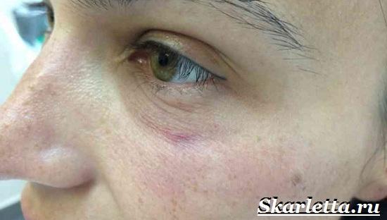 Что-такое-купероз-Причины-и-лечение-купероза-11