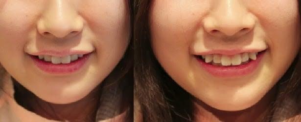 Tratamento Odontológico - Quanto custa um dentista no Japão?