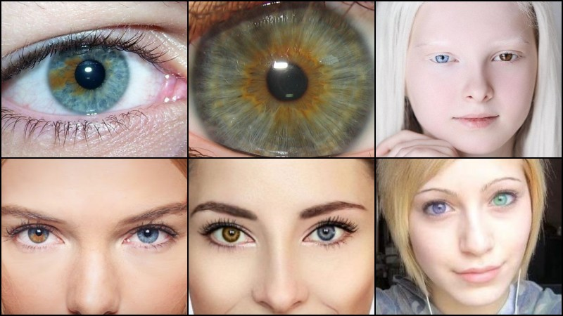 Heterochromia in anime - characters with different eyes