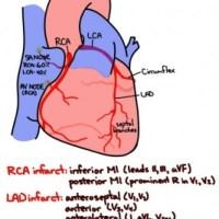 Coronary artery supply and corresponding MIs